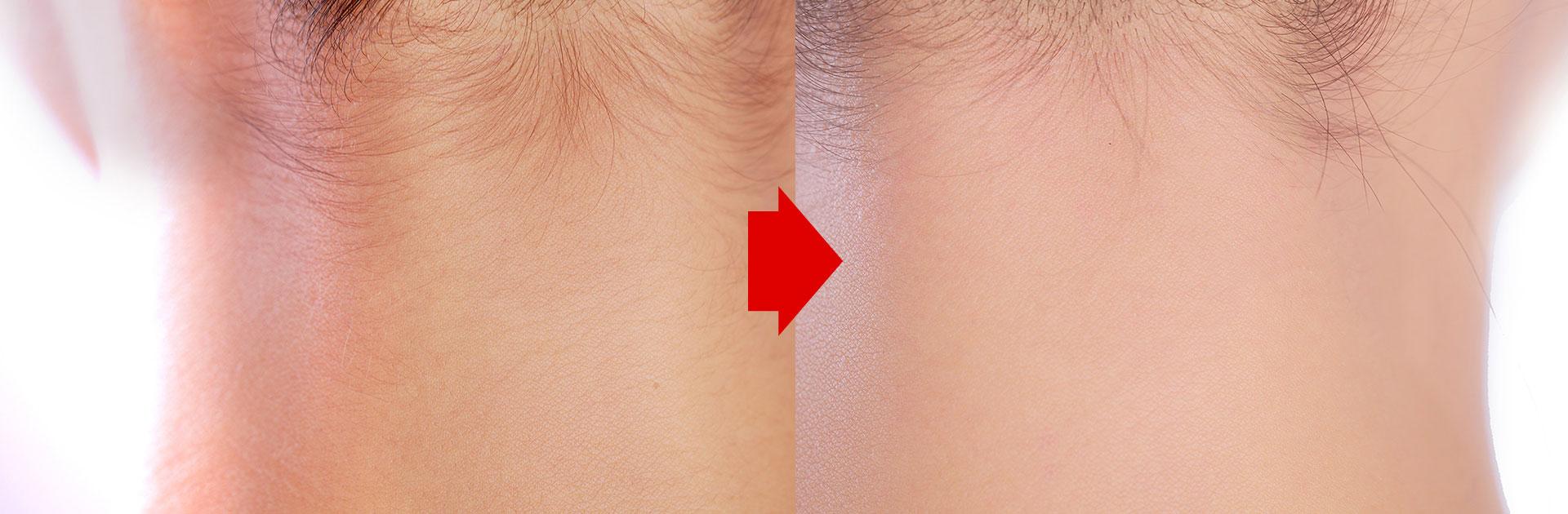 うなじのワックス脱毛前と後の比較画像拡大
